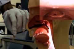 Λαρυγγοσκόπηση-με-εύκαμπτο-ενδοσκόπειο